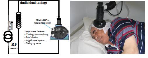 Oncothermia for advanced brain gliomas