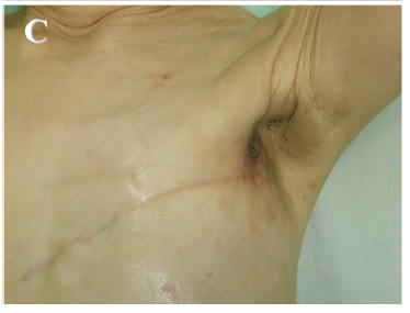 The utility of hyperthermia for local recurrence of breast cancer