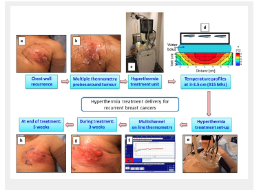 Hyperthermia and reirradiation for locoregional recurrences in preirradiated breast cancers: a single institutional experience