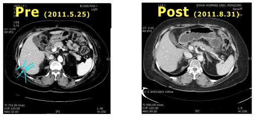 Electro-hyperthermia for refractory ovarian cancer patient having bone marrow depletion as a consequence of long-term chemotherapy : Case Report